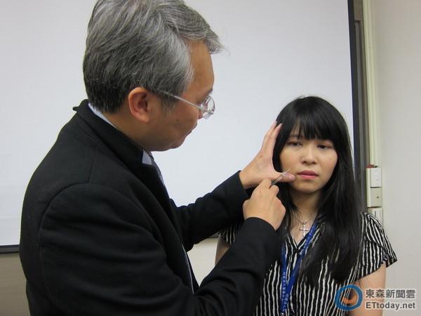 玻尿酸推太猛「塞住血管」 30岁女额头,鼻尖发黑溃烂图片