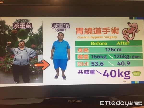 影/三高男「无疤缩胃」减掉1/4个自己 连糖尿病也痊愈!
