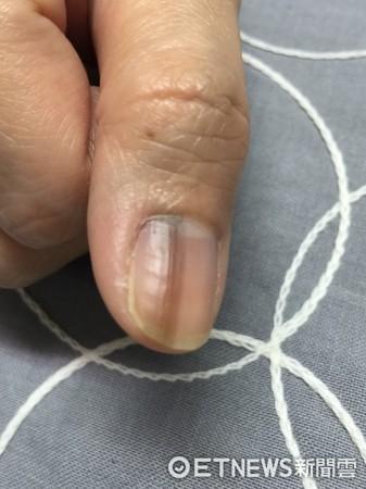 指甲出現黑色縱線 醫:良性縱向黑甲症(圖/南投醫院提供)