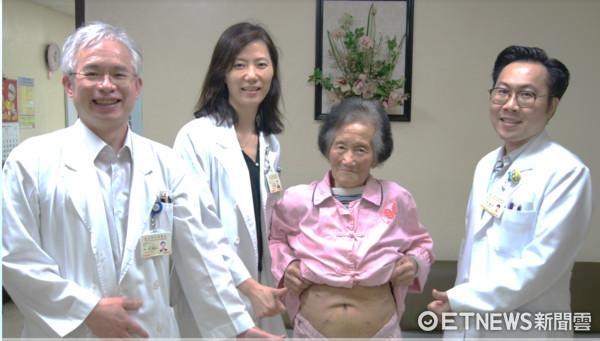▲胰臟頭癌要切十二指腸 這手術讓她「免留30公分疤」。(圖/北榮提供)