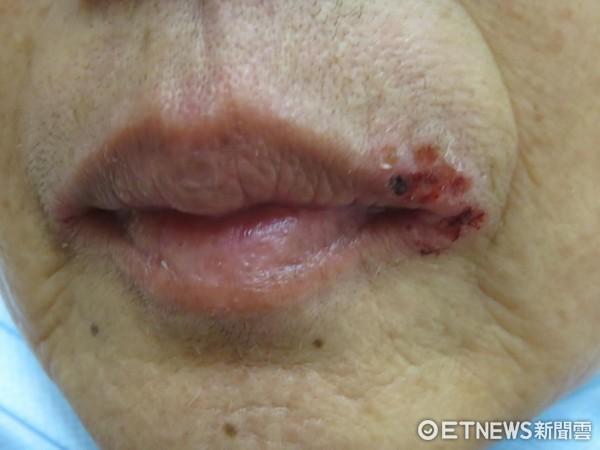 ▲唇皰疹。(圖/長庚醫院提供)