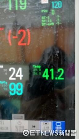 ▲78歲婦人曬衣中暑昏迷,體溫一度飆破41度。(圖/朱柏齡醫師提供)
