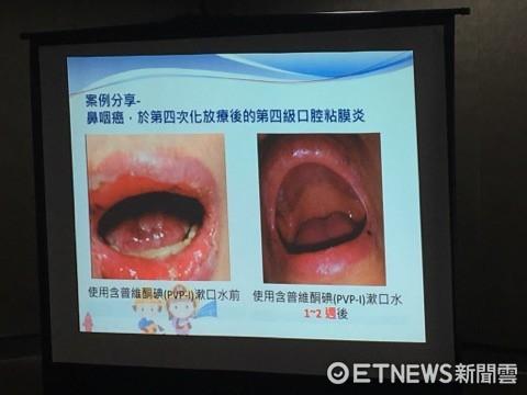 ▲口腔黏膜炎。(圖/記者嚴云岑攝)