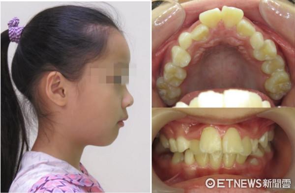 ▲鼻塞影響齒顎發育 9歲女童側臉「幾乎沒下巴」。(圖/記者嚴云岑攝)
