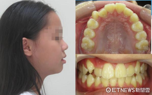 ▲鼻塞影響齒顎發育 9歲女童側臉「幾乎沒下巴」。(圖/三軍總醫院提供)