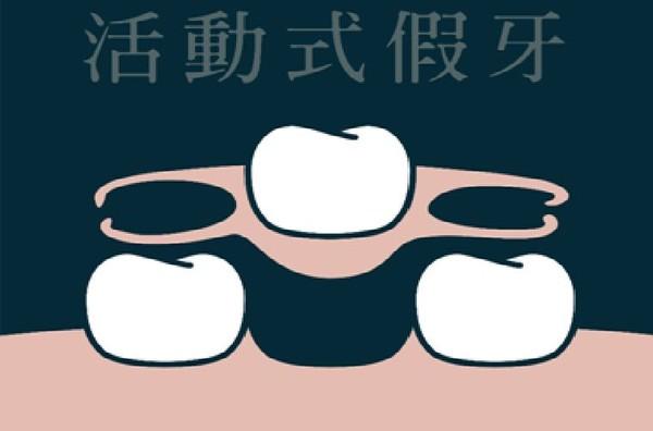 ▲▼缺牙除了選擇植牙,還有其他2種方式可以選擇。(圖/醫師游惠捷提供)
